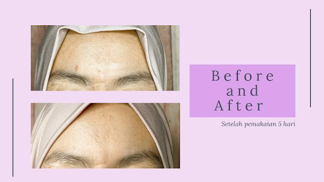 hasil-pemakaian-face-care-acne-series