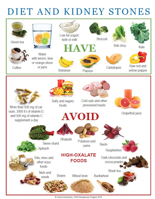 What Foods Not To Eat If You Have Kidney Stones