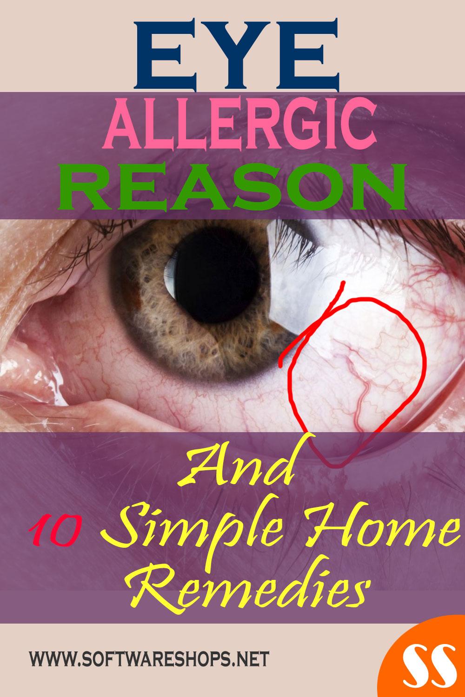 eye allergy home remedies