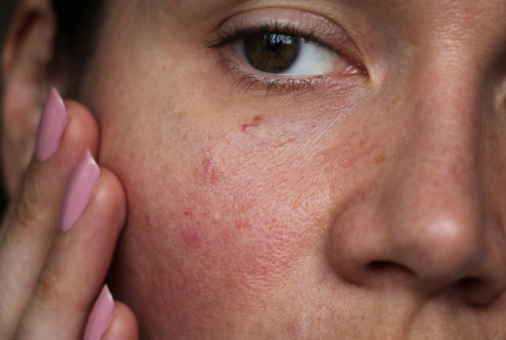 kitörések az arc bőrén vörös foltok formájában felnőtteknél)