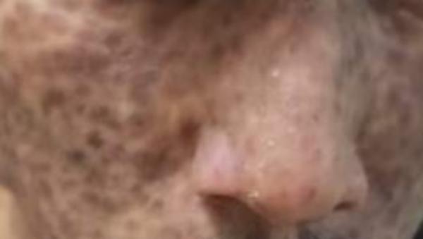Kondisi Ustadz Maaher Sebelum Meninggal, Bintik Merah Berubah Menghitam
