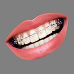 teeth in spanish