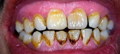 Cara Menghilangkan Karang Gigi secara Alami dan  Tradisional dengan Cepat Sendiri Tanpa Harus ke Dokter