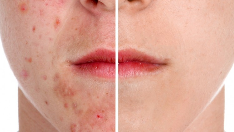what gets rid of acne overnight