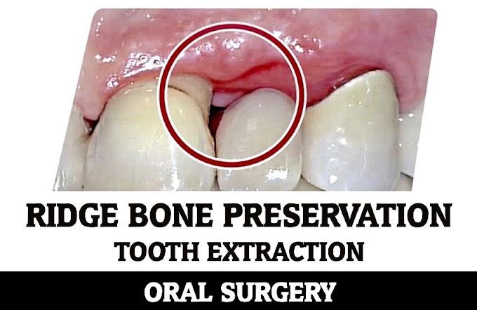 TOOTH EXTRACTION: Ridge Bone Preservation