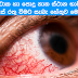 What Causes Red Eyes After Swimming or Bath In a Public