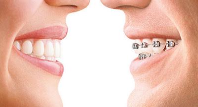 Dos bocas con diferentes tipos de ortodoncia