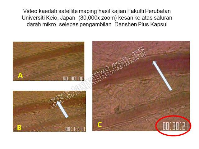 Ujian Satelite mapping technology keatas Tasly Danshen Plus