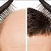زراعة الشعر بالليزر: تقرير متكامل حول الجراحة