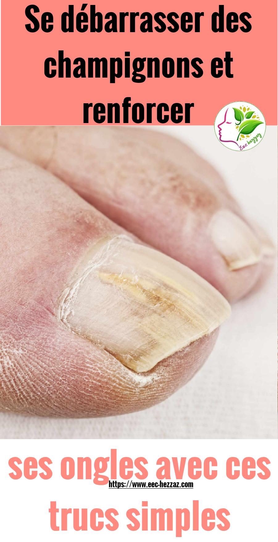 Se débarrasser des champignons et renforcer ses ongles avec ces trucs simples