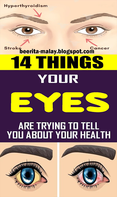 14 Things Your Eyes Are Trying To Tell You About Your Health