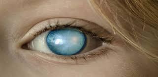 وصفات لعلاج الماء الابيض في العين