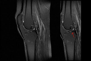 How to read an MRI right knee profile resonata magnetica ACL tear break ligament