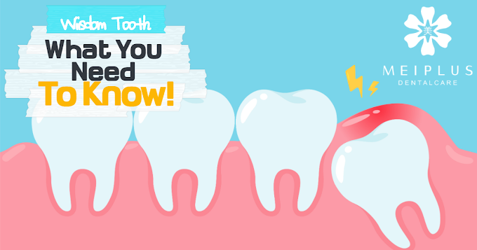 Wisdom Teeth; What you Need to Know !