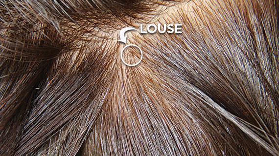 شكل القمل في الشعر