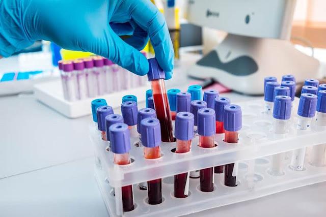 Hà Nội vừa phát hiện 3 ca nhiễm virus Corona (Covid-19) Vũ Hán qua test nhanh