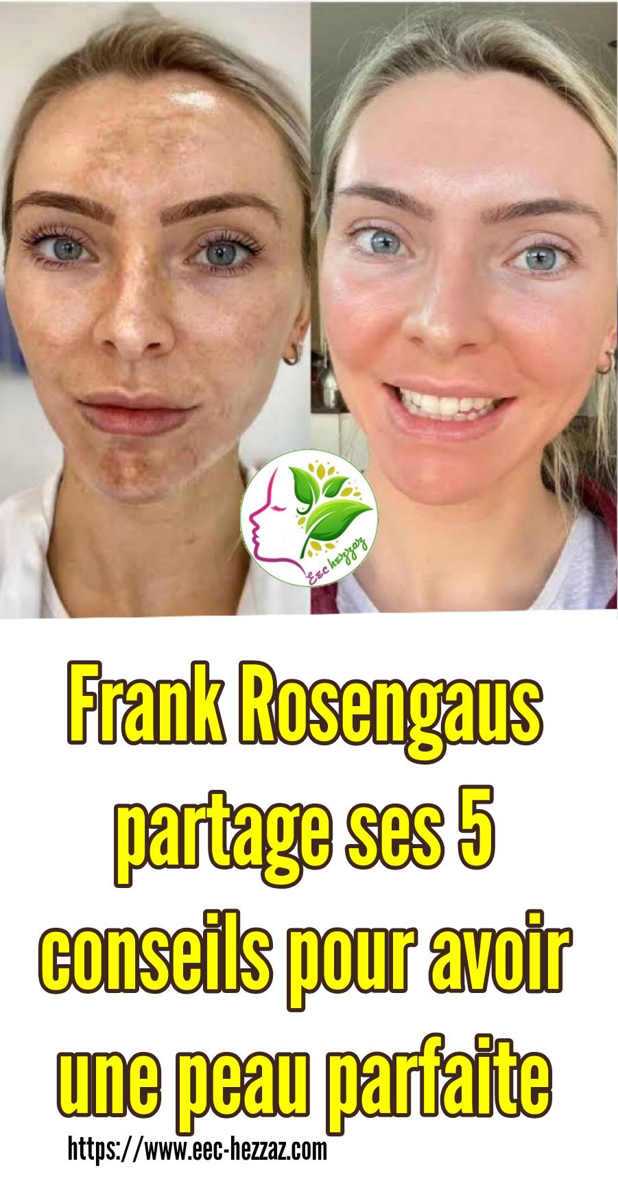 Frank Rosengaus partage ses 5 conseils pour avoir une peau parfaite