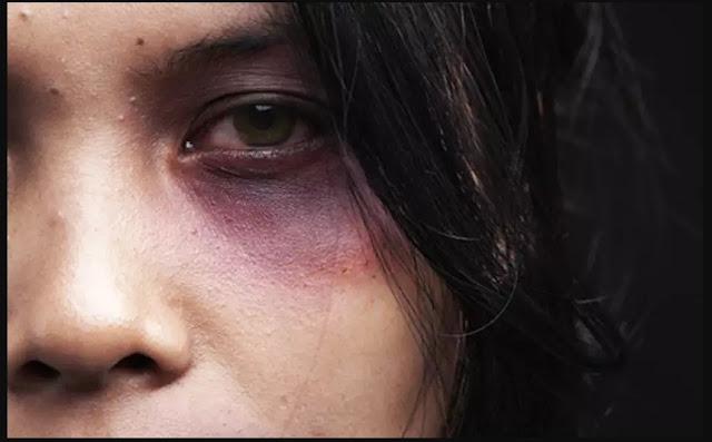 Tentativa de feminicídio mulher fica ferida ao levar golpes de tesoura no pescoço e rosto do ex marido
