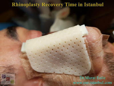 Rhinoplasty Recovery Time in Istanbul