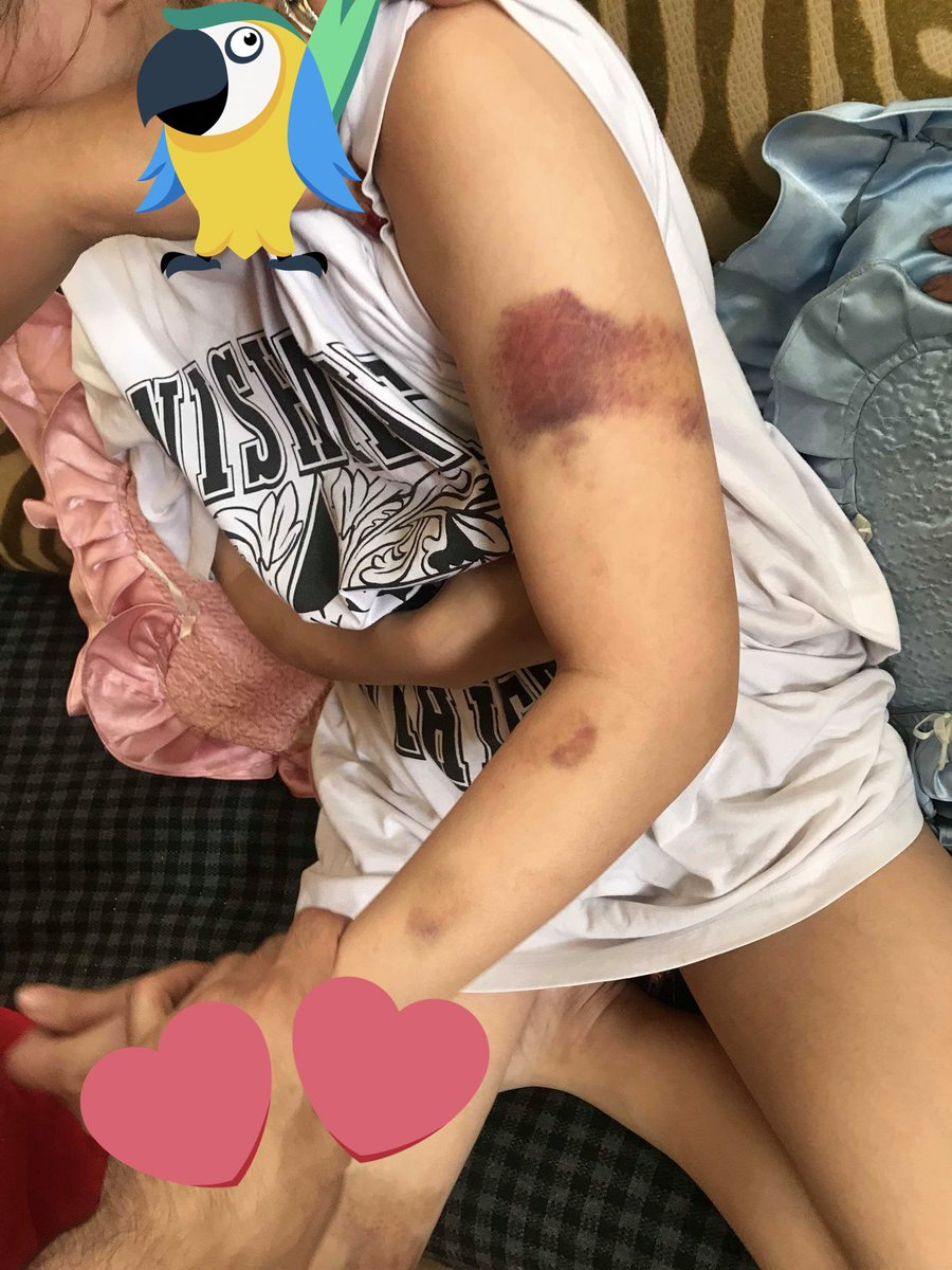 Guy only gets 'community service' for beating up GF, angers netizens