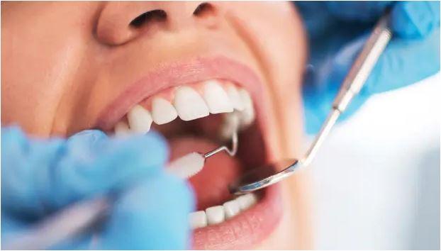 4 Cara Menghapus Plak Gigi Di Rumah Secara Alami