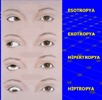 gözün eksen bozukluğu ile ilgili hipotropya hipertropya esotropya ve exotropya anlatan resim