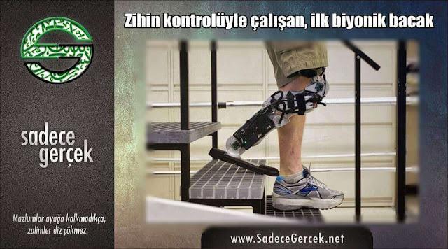Zihin kontrolüyle çalışan ilk biyonik bacak