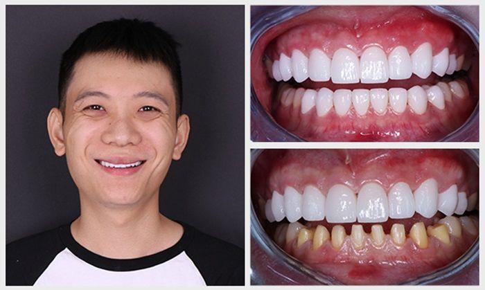 Khách hàng bọc răng sứ tại nha khoa Navii