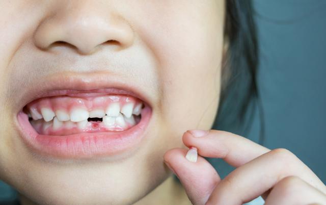 Jumlah Gigi Anak-anak