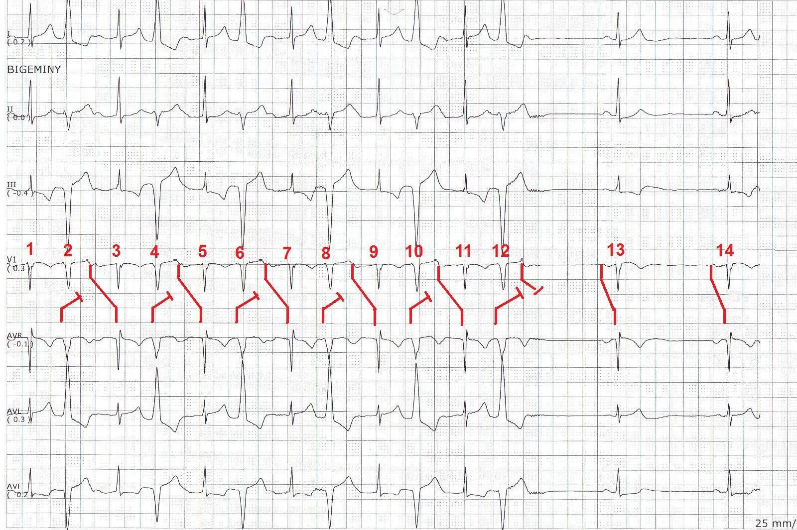 Ecg Rhythms Concealed Conduction Affecting The Av Conduction