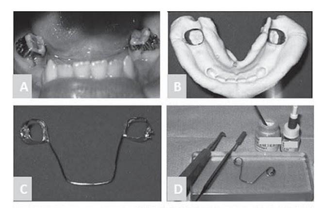 PDF: Arco lingual como mantenedor de espaço na perda precoce de dentes decíduos