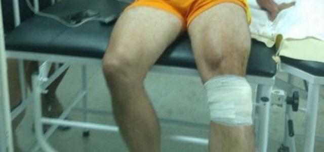 Vereador é baleado na perna, dentro de carro com filho na Bahia