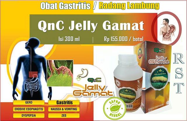 Obat Gastritis / Radang Lambung Herbal yang Terbukti Ampuh Mengobati Secara Alami serta Efektif & Aman
