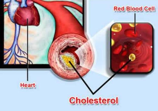 Testimoni Magozai Herbal Kolesterol