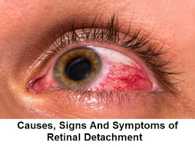 The retina is the inner lining of the eye  Causes, Signs And Symptoms of Retinal Detachment
