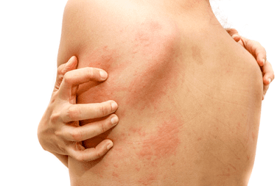 What Causes Pimples, acne, and pimples on the face, Get rid of Pimples