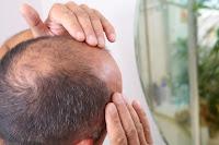 Baldness Treatment