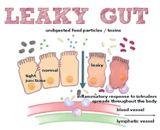 http://www.leakygutcurereview.org/celiacdisease-symptoms.html