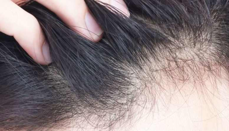 ماذا تفعل حيال فقدان الشعر ؟ وهل سوف يتساقط شعرك ؟