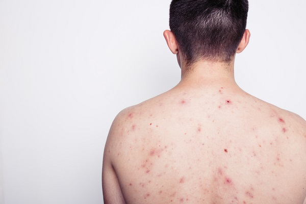 Your Body has Acne Here's how to Properly Prevent Acne
