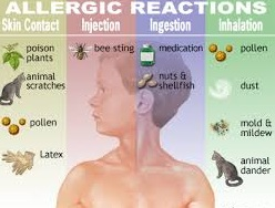 Infographics showing Allergy Symptoms