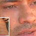 Homem é internado para retirar bala da coluna e sai do hospital sem um rim