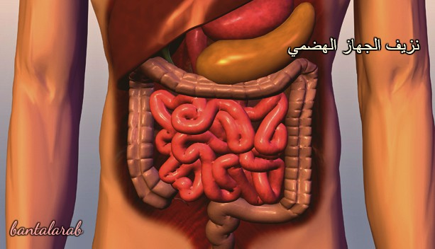 نزيف الجهاز الهضمي Gastrointestinal bleeding