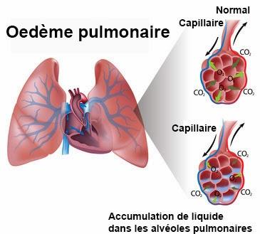 oap oedeme aigu du poumon infirmier