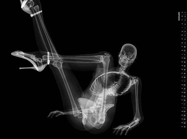 Eizo nude X-ray calender 2010 december