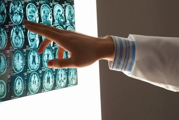 Vitamins For Your Brain Mandatory Consumption