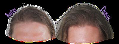Resultado Shampoo Micelar Acqua Equilibrium Arvensis - Antes e Depois