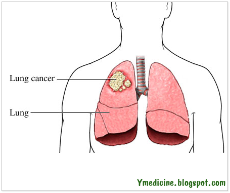 How is lung cancer diagnosed?