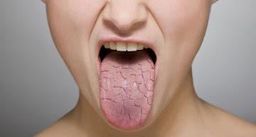 جفاف الفم قد يكون عرض من اعراض السكري