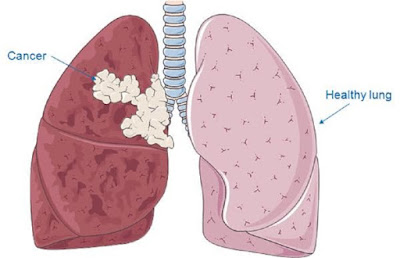 Asbestos Lung Cancer Remedy and Mesothelioma Facts
